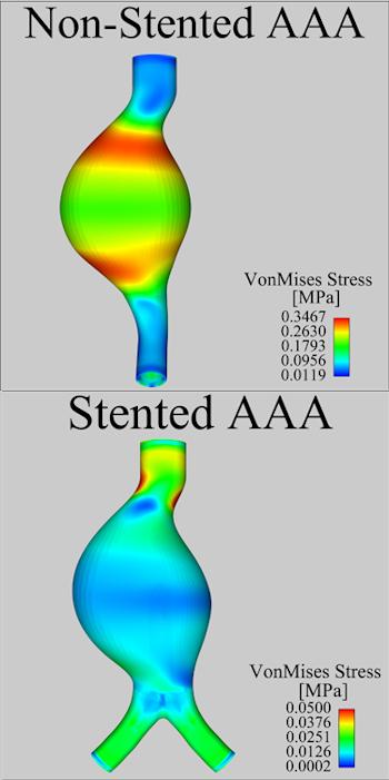 Arterial wall pressure